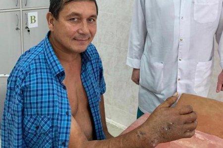 В Уфе врачи пришили мужчине руку, отсеченную станком