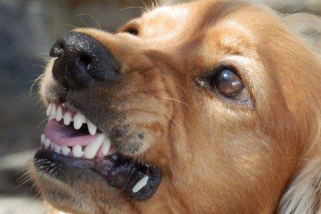 В Уфе на девятилетнего ребенка напала собака