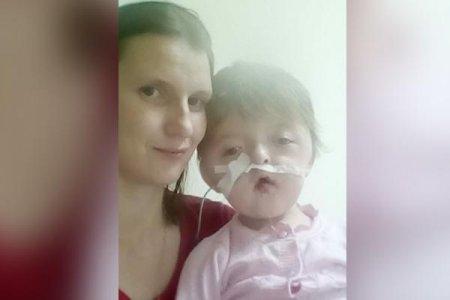 Девочку с деформированным лицом прооперировали в уфимской клинике